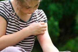 Niña con picadura de abeja en brazo
