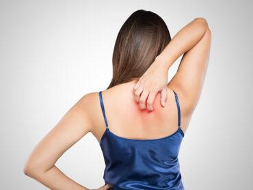 La dermatitis causa picazón