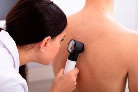 El COVID-19 podría afectar la piel