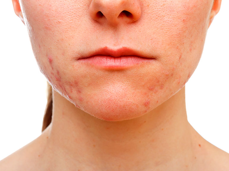 El acné es muy invasivo en la persona