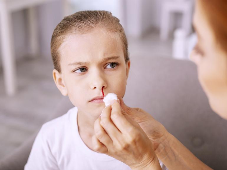 El sangrado de nariz preocupa a los padres