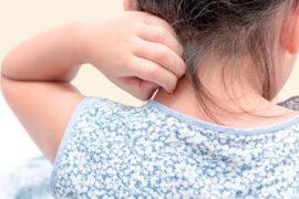 La dermatitis atópica afecta a muchos niños