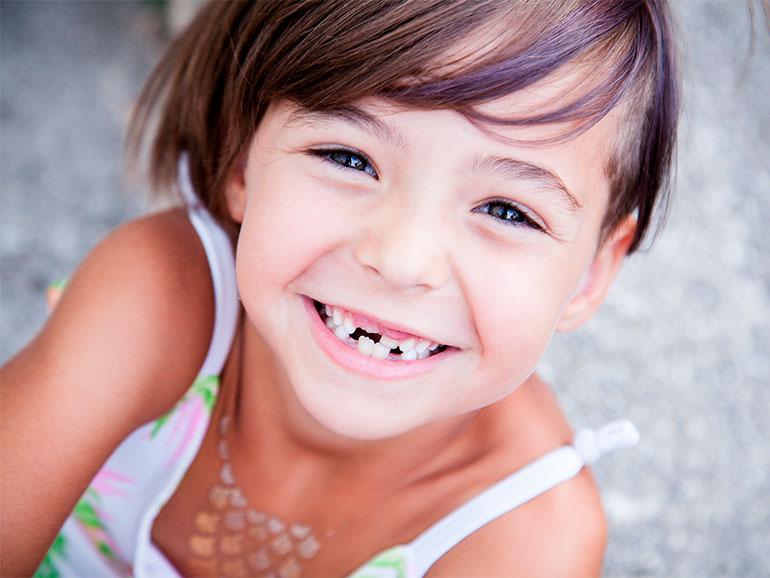 Los padres deben estar atentos a los dientes de los niños