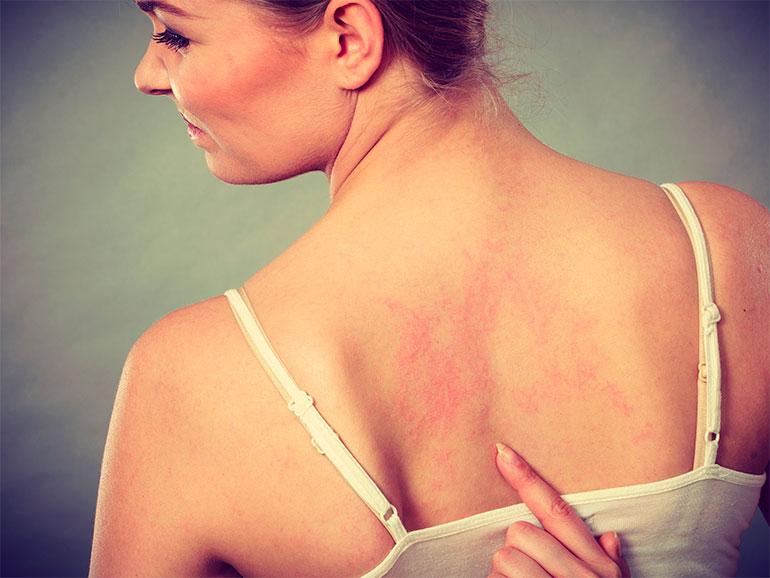 La dermatitis de contacto puede ser dificultosa