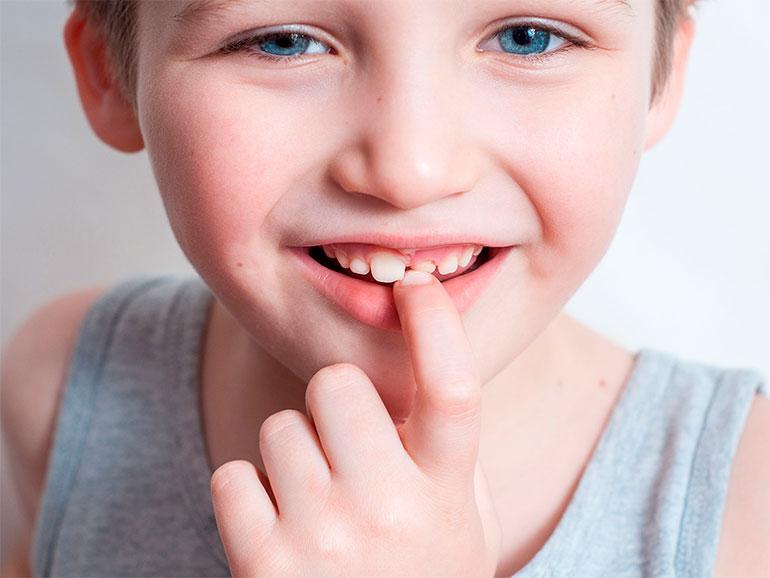 Un diente puede salir por atrás antes de tiempo