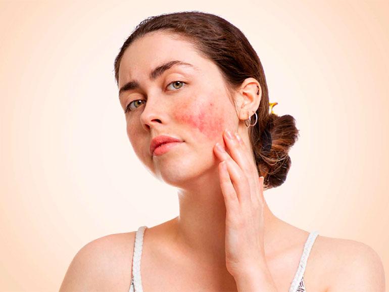 La rosácea afecta la piel